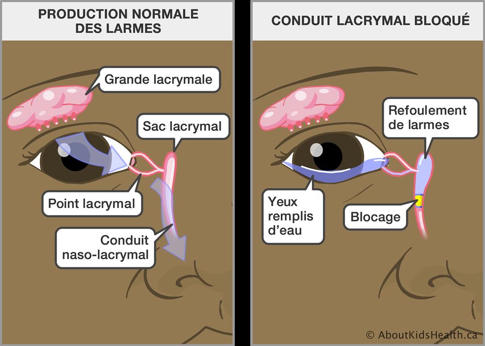 Schémas explicatif d'un canal lacrymal bouché.