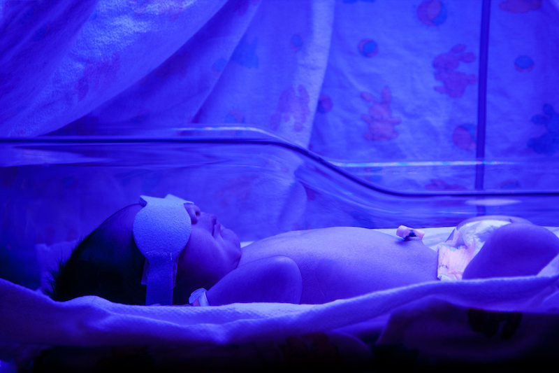 La jaunisse ou ictère du nouveau-né