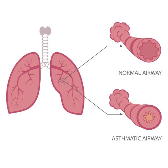 Schémas d'une bronchite