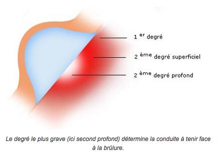 Schémas d'une brulure de 3ème degré.
