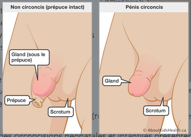 Schémas d'un pénis circoncis