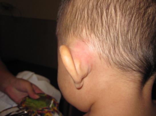 Enfant présentant un signe de masoidite