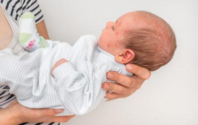 L'érythème toxique du nouveau-né